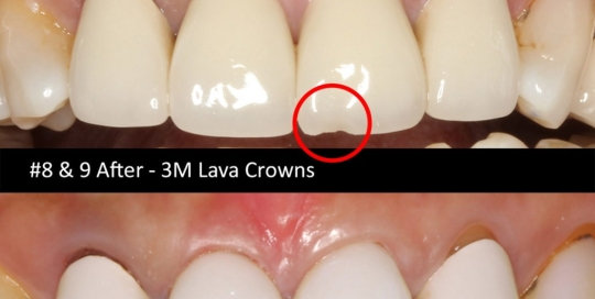 3m-lava-crown