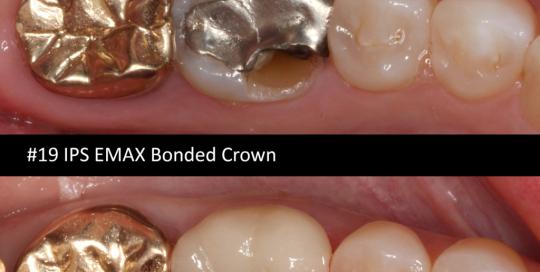 IPS-emax-bonded-crown
