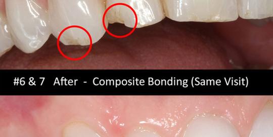 composite-bonding-2