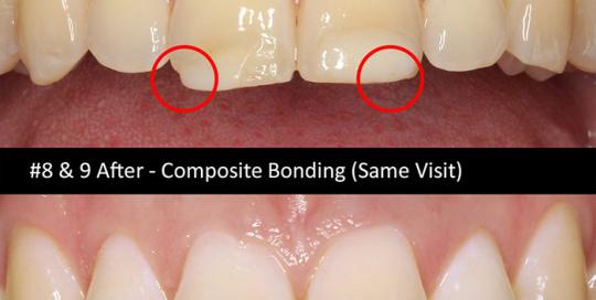 composite-bonding-4