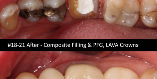 composite-pfg-lava-crown