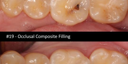 occlusal-coposite-filling