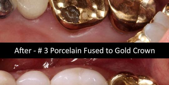 porcelain-fused-gold-crown-2