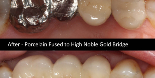 porcelain-fused-high-noble-gold-bridge