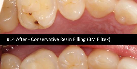 resin-filling
