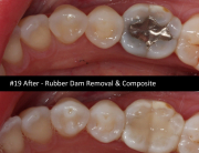 rubber-dam-composite