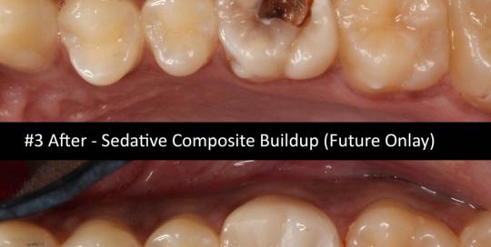 sedative-composite-buildup